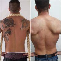 Después de varias sesiones de láser se consiguen muy buenos resultados  sin posteriores marcas en la piel.