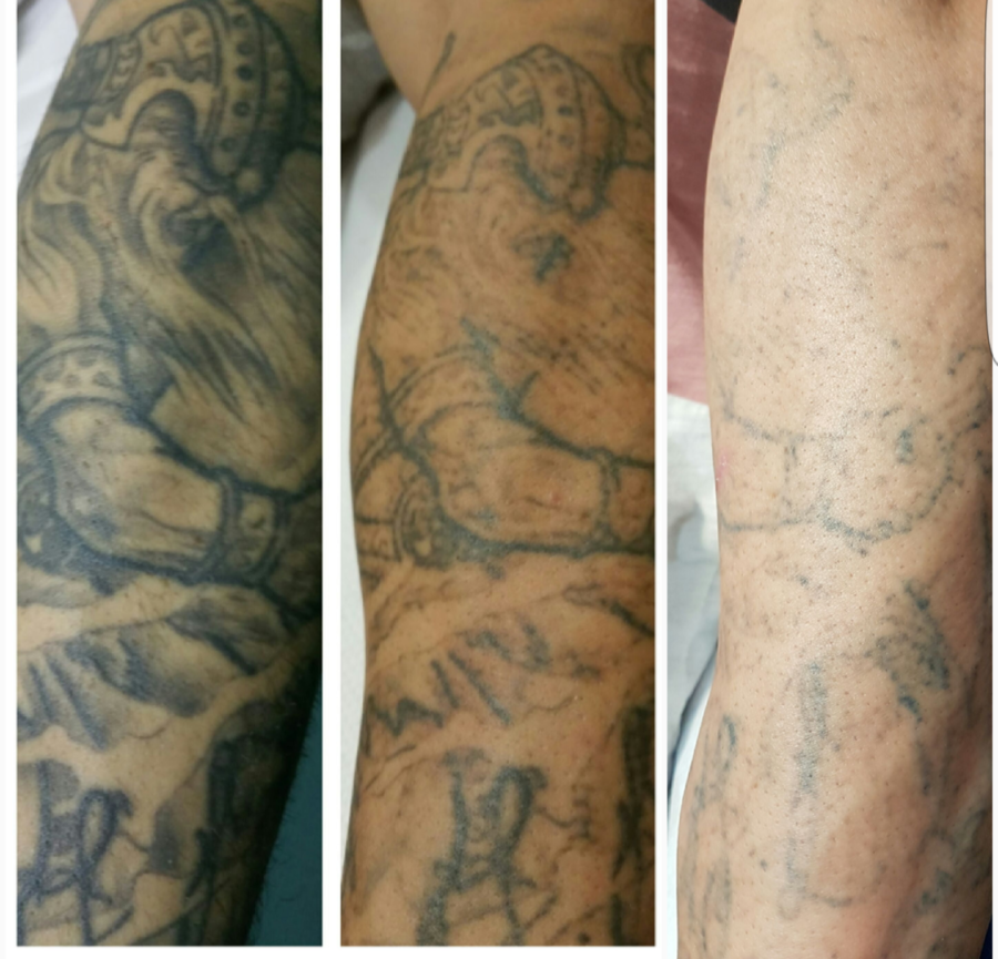 Tatuajes Borrados Por Laser lasser tattoo valencia - ¿deja señales? ¿quema?